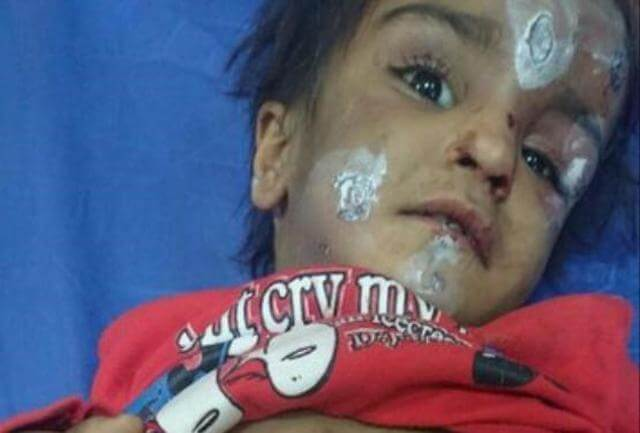 ماجرا و علت شکنجه ستایش 3 ساله در رفسنجان + عکس