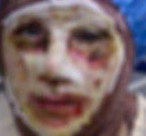 عکس کتک زدن و اسیدپاشی روی مادر و دختر در لرستان