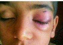 ماجرای تنبیه بدنی و مصدومیت دانش آموز سیستان بلوچستان + عکس